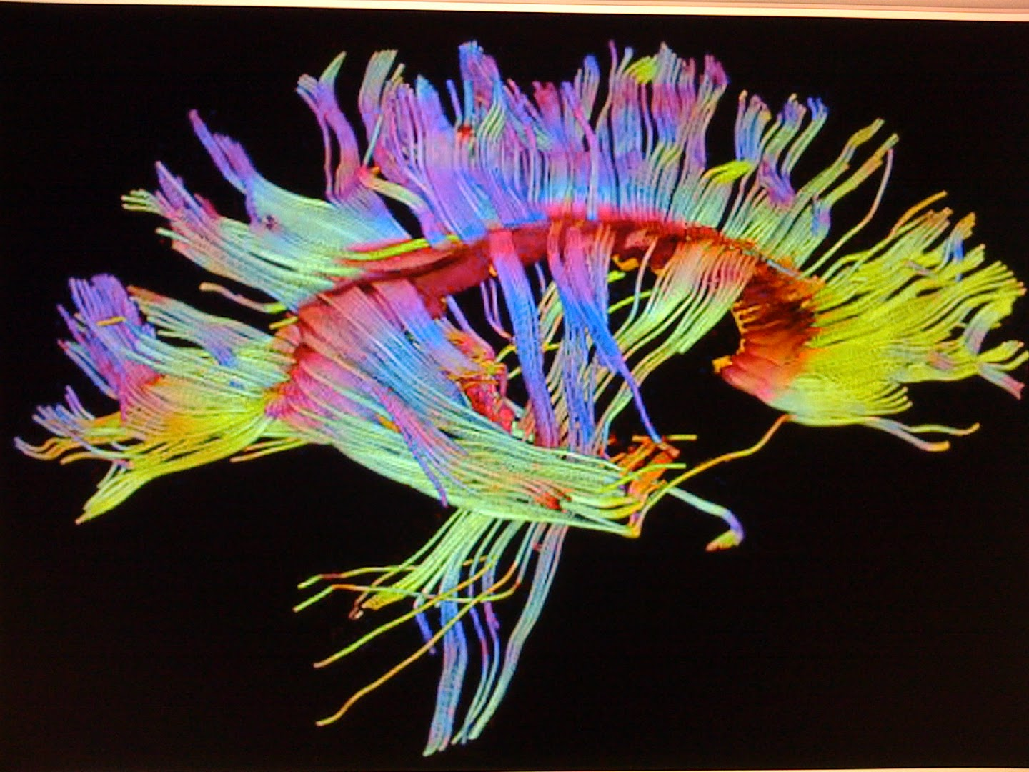 Diffusion Tensor Tractography of Human Brain, 2007. Aaron Filler was the lead inventor on the project that led to the development of DTI (diffusion tensor imaging).